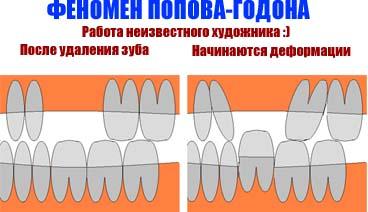 виниры на зубы из полипропилена